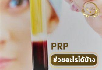 PRP ช่วยอะไรได้บ้าง