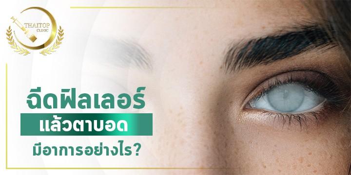 ฉีดฟิลเลอร์แล้วตาบอด มีอาการอย่างไร ?