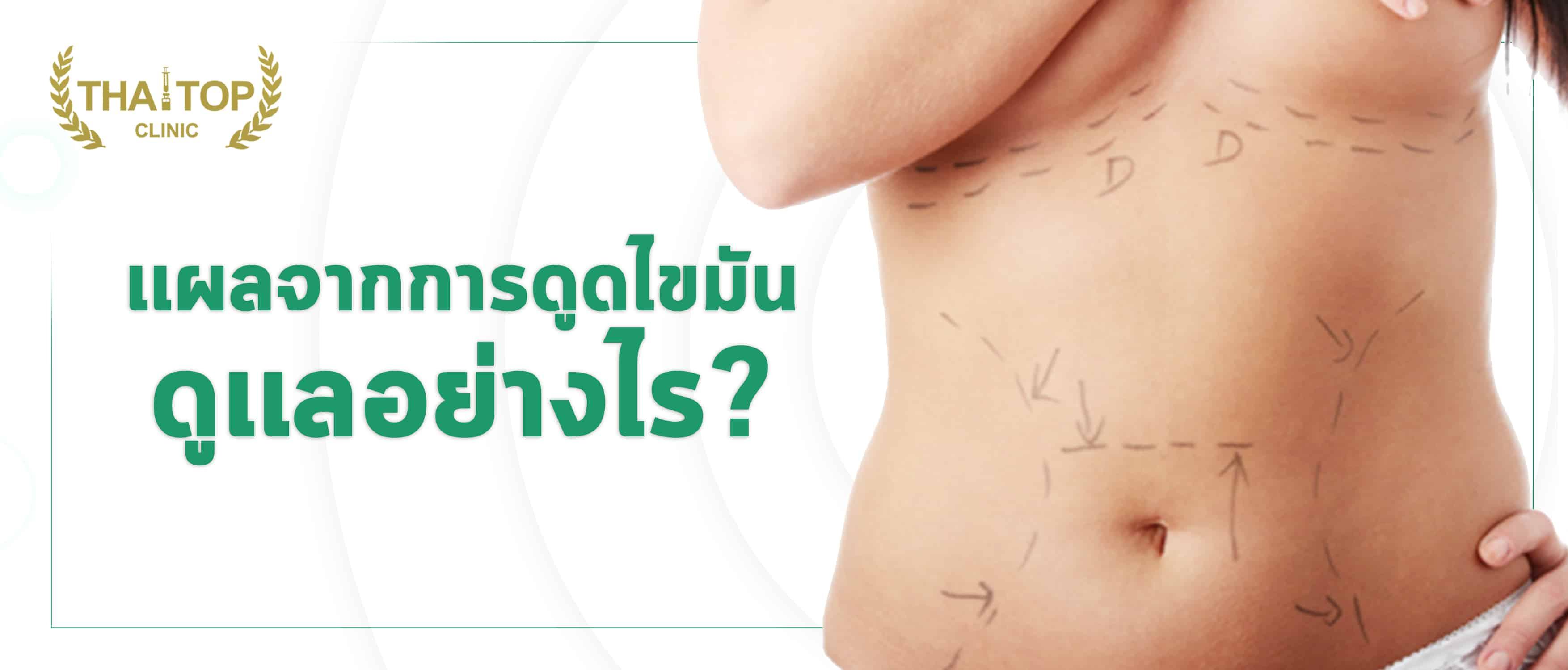 แผลจากการดูดไขมันดูแลอย่างไร ?