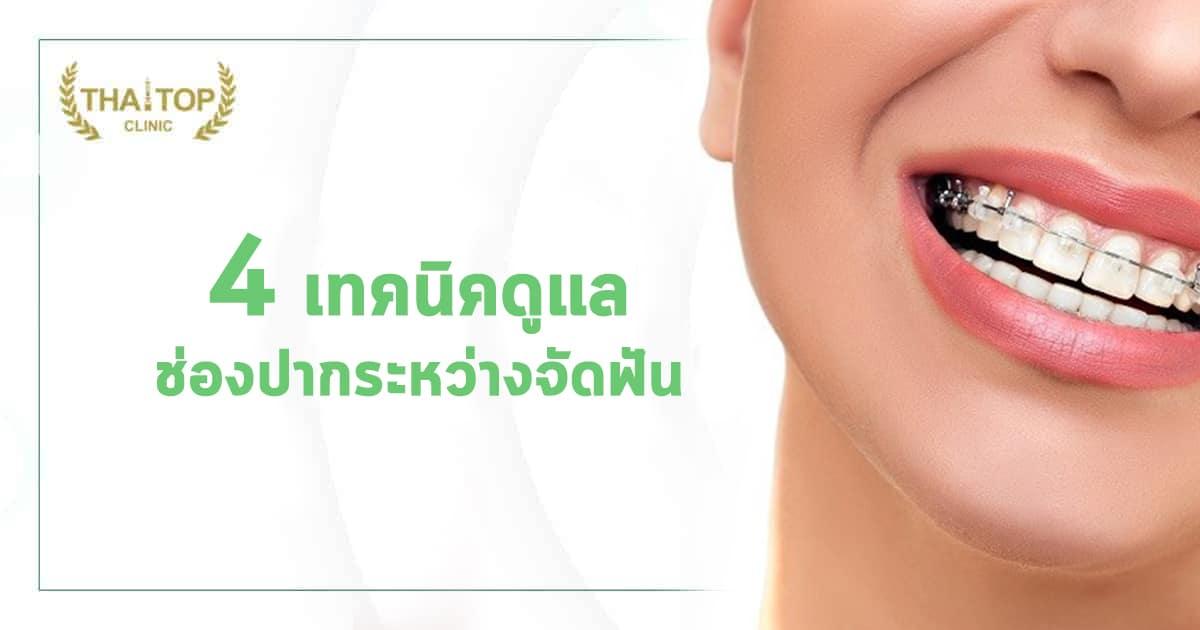 4 เทคนิคการดูแลช่องปากระหว่างจัดฟัน