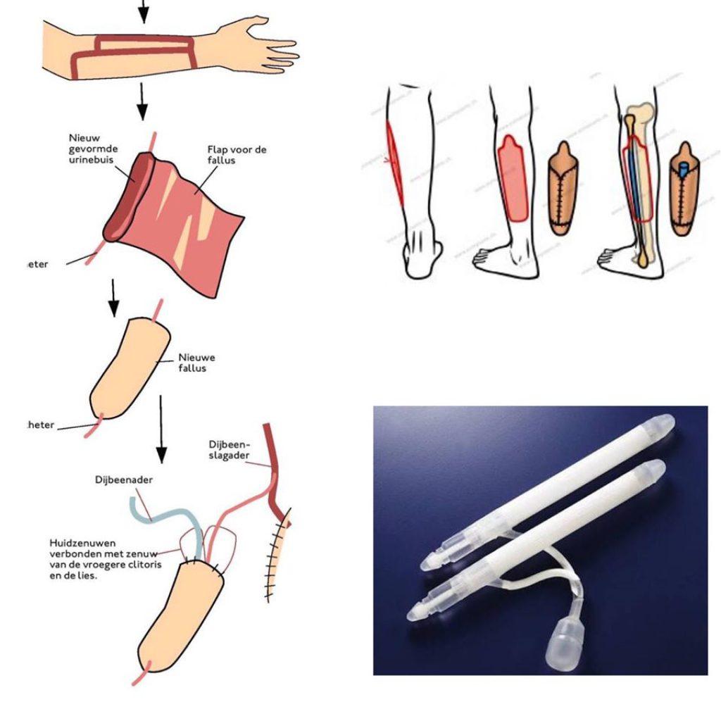ขั้นตอนผ่าตัดแปลงเพศ