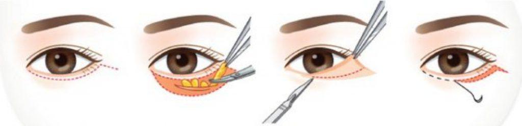 ศัลยกรรมตัดไขมันถุงใต้ตา