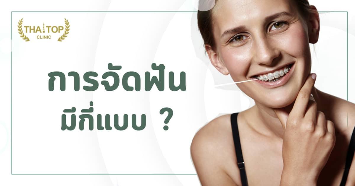 การจัดฟัน มีกี่แบบ ? มีความแตกต่างกันอย่างไร ?