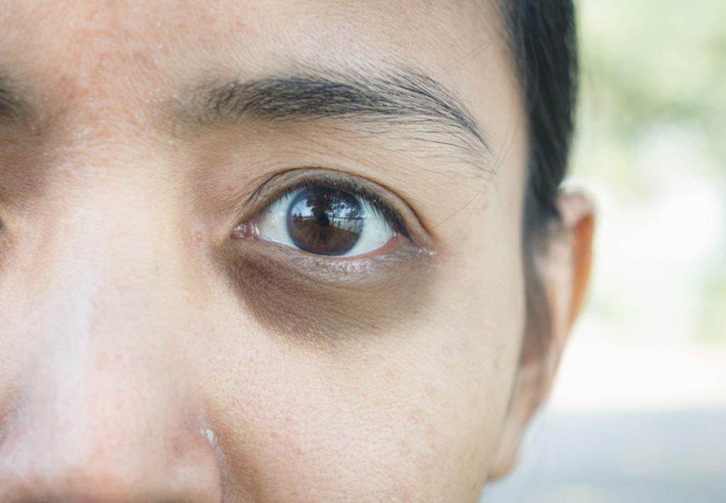 ขอบตาดำ ทำไงดี