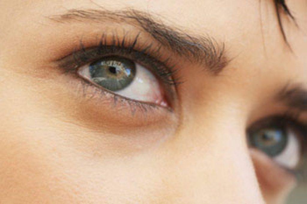 ขอบตาดำ รักษาอย่างไร