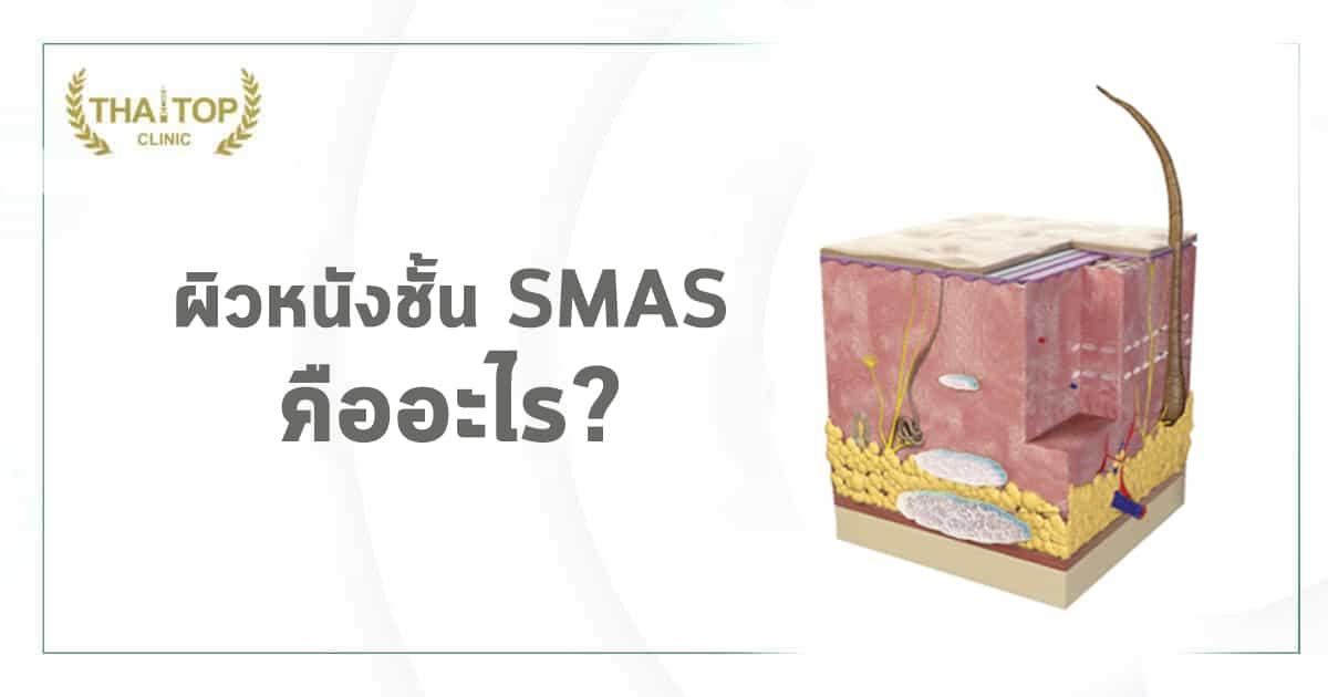 ผิวหนังชั้น SMAS คืออะไร