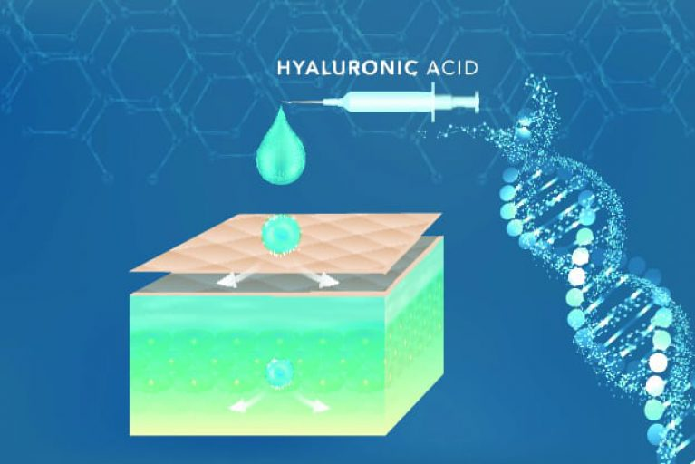 Hyaluronic Acid ฟิลเลอร์