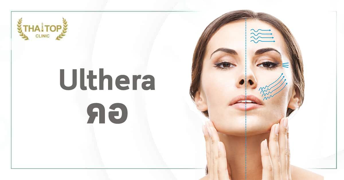 Ulthera คอ