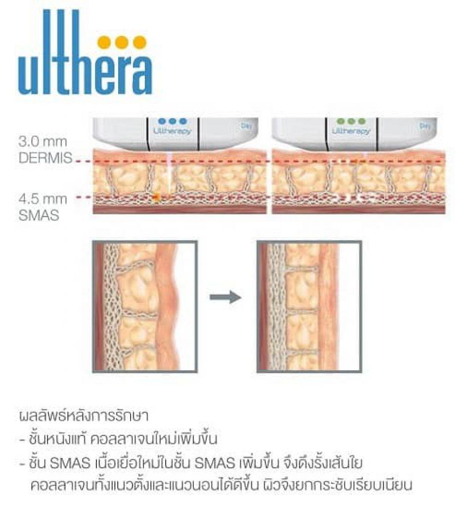 ulthera ดี ไหม รีวิว